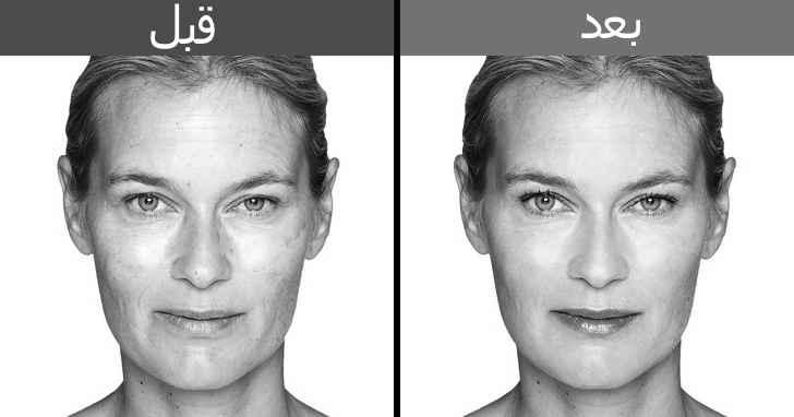 تمارين شد الوجه قبل و بعد